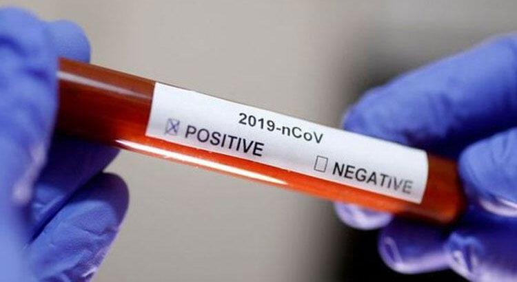 Dünya Çin'de çıkan yeni virüsü konuşuyor!